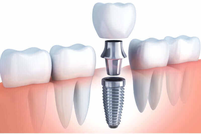 Dental Implants in Pune