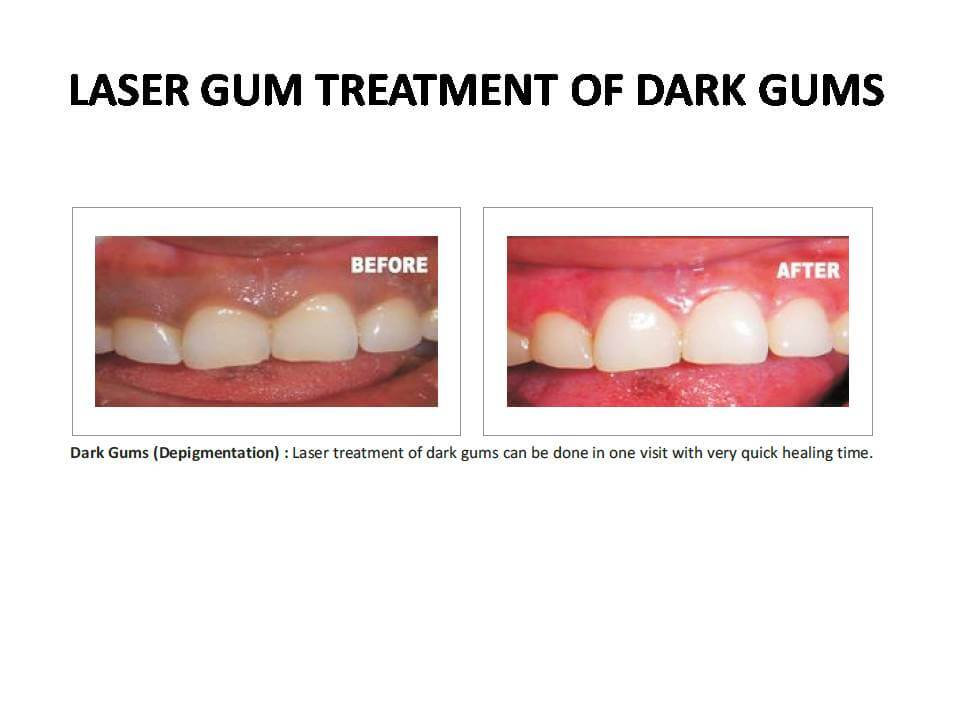 Gum disease treatment in Pune,Gum therapy in Pune,Dental clinic in