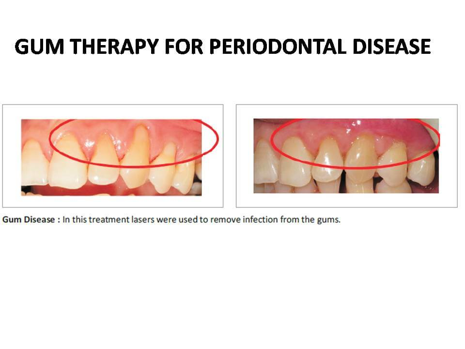 Laser gum treatment in Pune,Gum disease treatment in Pune