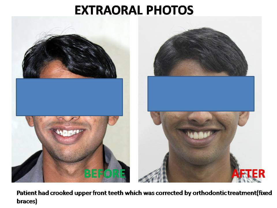 IntraOral Photos