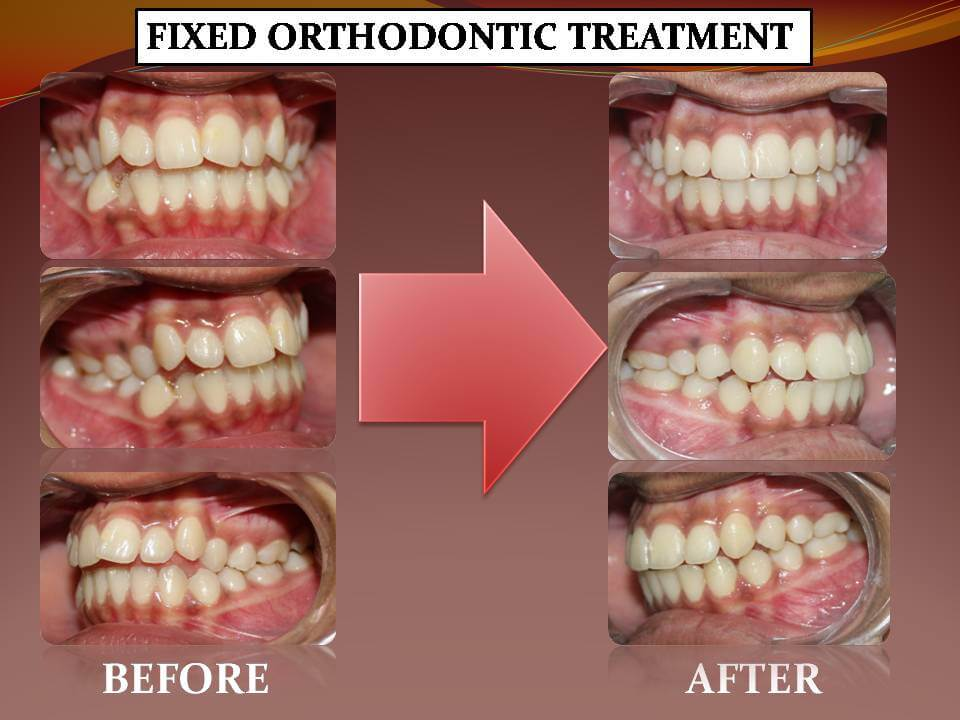 Fixed Orthodontics Treatment